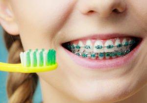 Für Zahnspangenträger ist eine sehr gründliche Zahnpflege Pflicht.