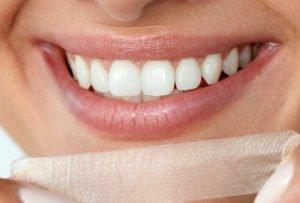 Bleaching-Strips klebst Du einfach auf Deine Zähne.