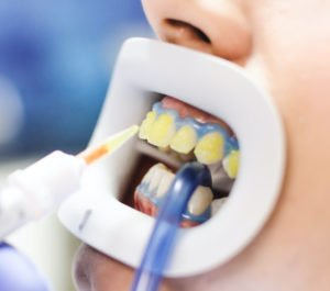 Beim In-Office-Bleaching wird das Zahnfleisch durch ein Spanngummituch geschützt.