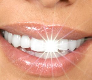 Bei leichten Verfärbungen bekommst Du mit einem Whitening Pen wieder weiße Zähne.