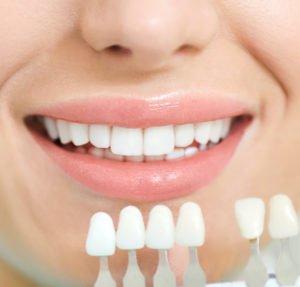Wie hoch die Kosten für ein Bleaching beim Zahnarzt ausfallen, hängt von der Bleaching-Methode ab.