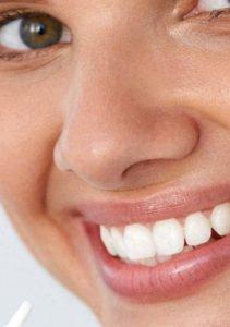 In wenigen Schritten kannst Du Deine Zähne mit einem Whitening Pen aufhellen.