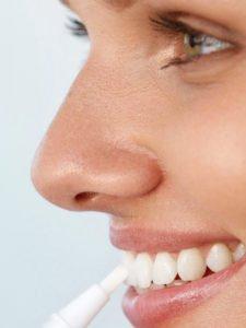 Mit einem Whitening-Pen kannst Du jeden Zahn einzeln mit Bleaching-Gel behandeln.