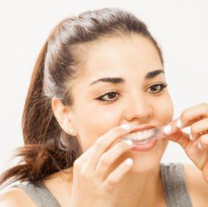 Die Bleaching-Strips musst Du exakt auf Deine Zähne kleben und dabei das Zahnfleisch aussparen.