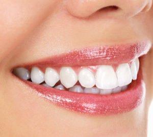 Um weiße Zähne zu bekommen, ist die richtige Zahnpflege entscheidend.