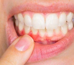 Durch Zahnstein können Zahnfleischentzündungen entstehen. Daher ist eine regelmäßige Prophylaxe wichtig.