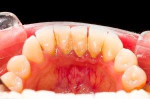 Im Grunde wird bei der Zahnsteinbildung der Plaque hart.