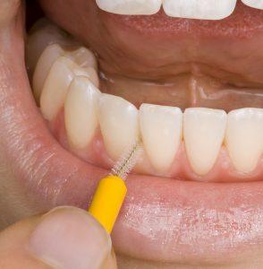 Besonders in Zahnzwischenräumen kommt es oft zu Zahnsteinbildung. Mit Interdentalbürsten und Zahnseide kannst Du dem entgegenwirken.