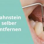 zahnstein-selber-entfernen