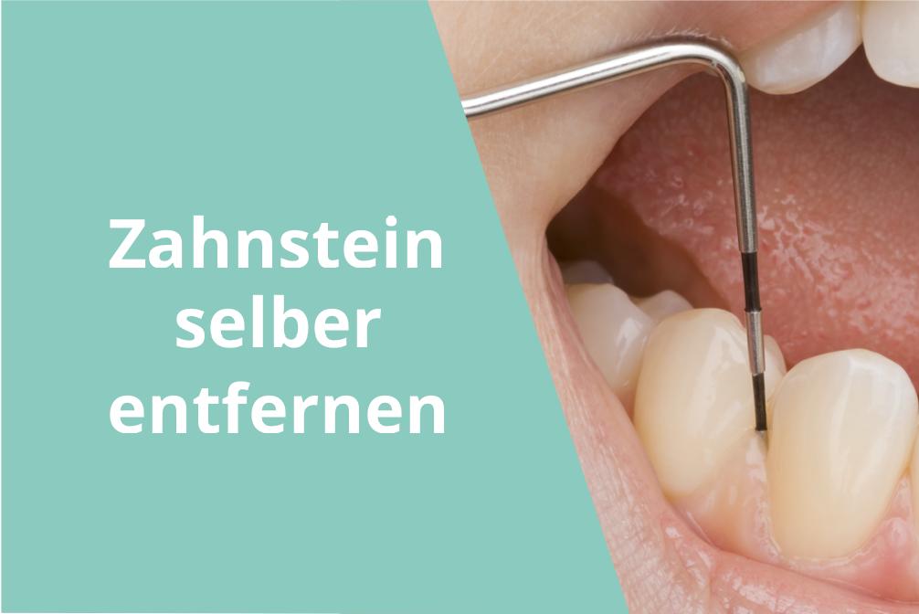 Zahnstein selbst entfernen: So nutzt Du Zahnsteinentferner