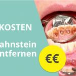 zahnstein-entfernen-kosten