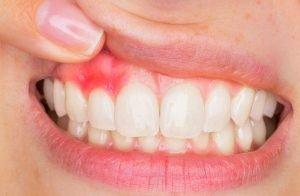 Eine Zahnfleischentzündung entsteht, wenn die Bakterien vom Zahn auf das Zahnfleisch übergehen.