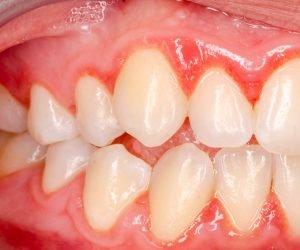 Zahnfleischentzündungen kannst Du mit einer guten Mundhygiene vorbeugen. Dazu gehören auch Mundspülungen und Zahnseide.